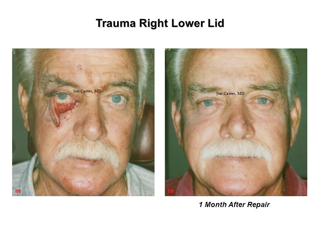 Trauma Right Lower Lid 1 Month After Repair 175 176 Jon Caster, MD