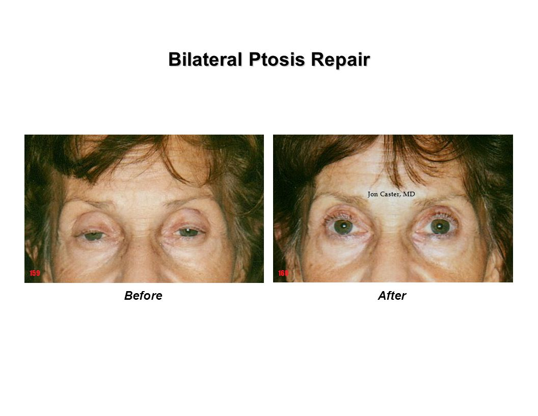 Bilateral Ptosis Repair