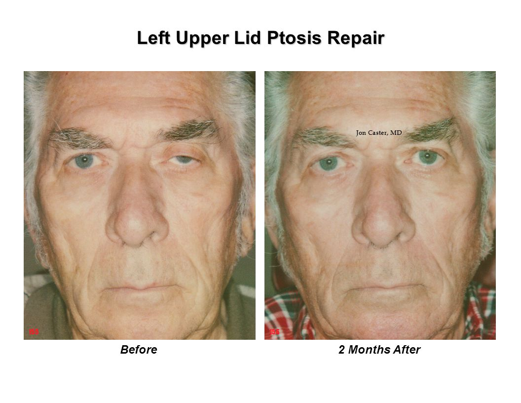 Left Upper Lid Ptosis Repair