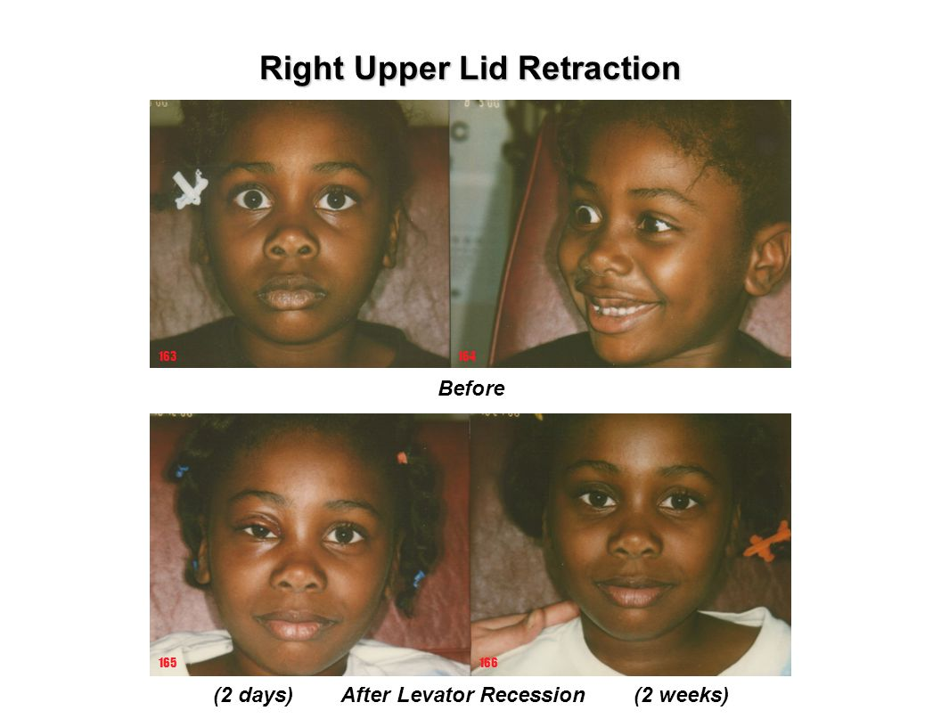 Right Upper Lid Retraction (2 days) After Levator Recession (2 weeks)