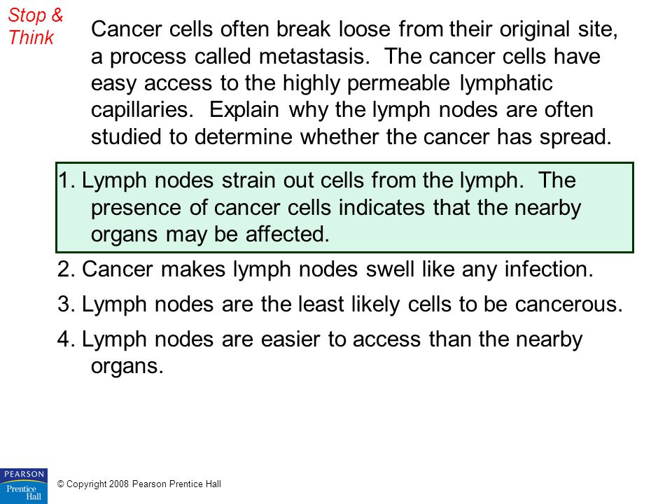 2. Cancer makes lymph nodes swell like any infection.