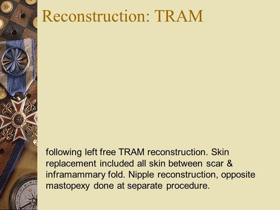 Reconstruction: TRAM