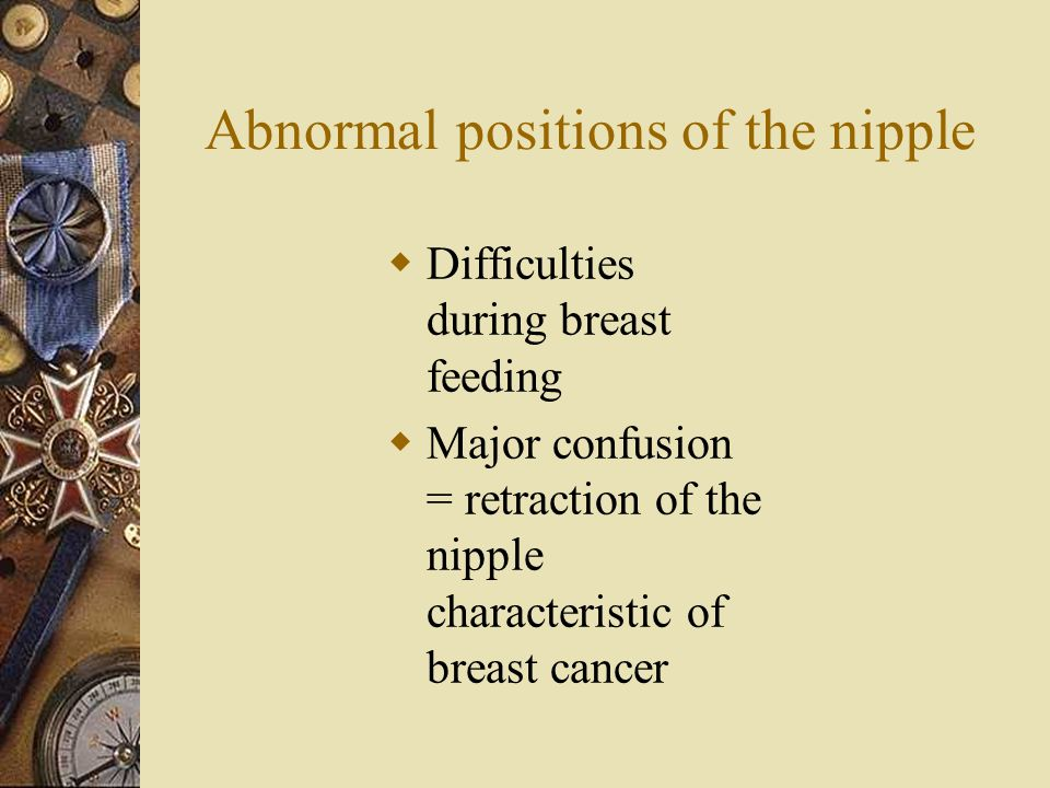 Abnormal positions of the nipple