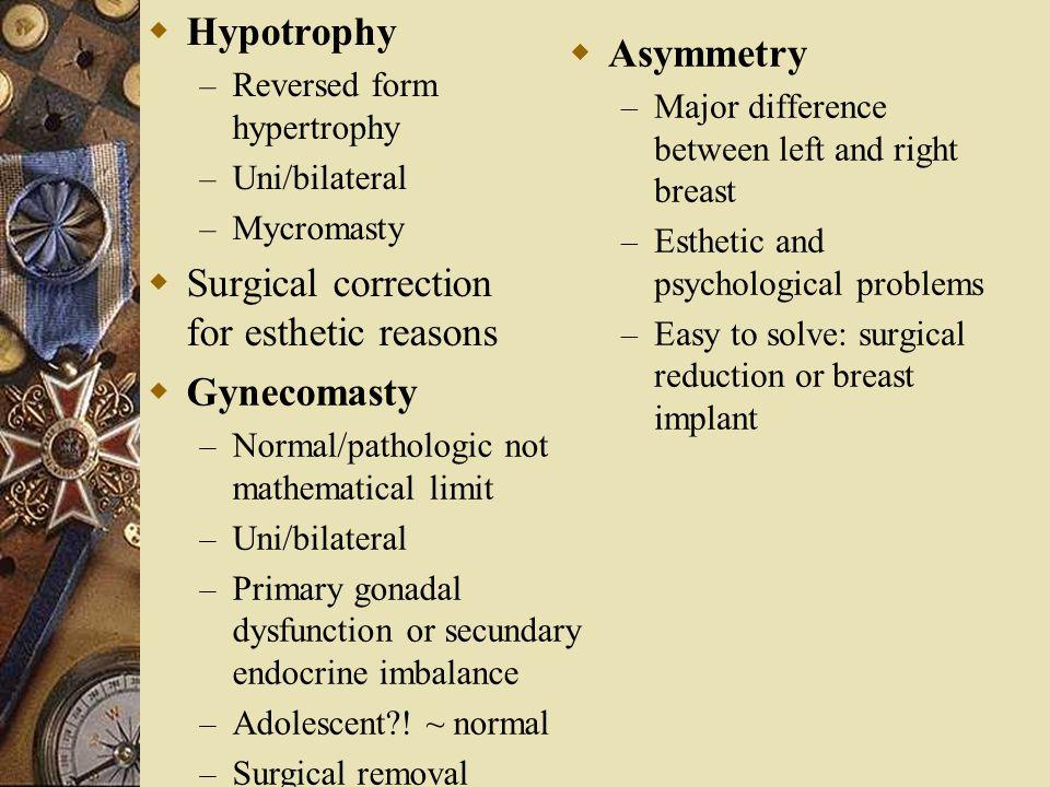 Surgical correction for esthetic reasons Asymmetry
