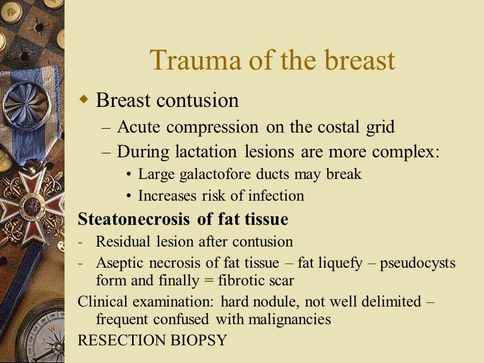 Trauma of the breast Breast contusion