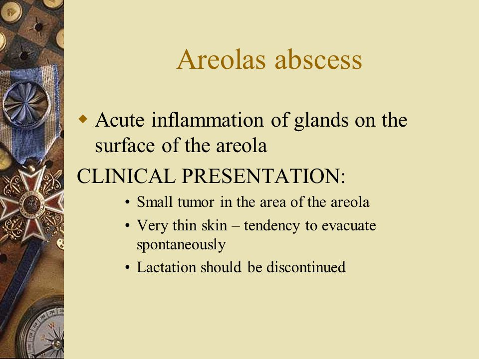 Areolas abscess Acute inflammation of glands on the surface of the areola. CLINICAL PRESENTATION: Small tumor in the area of the areola.