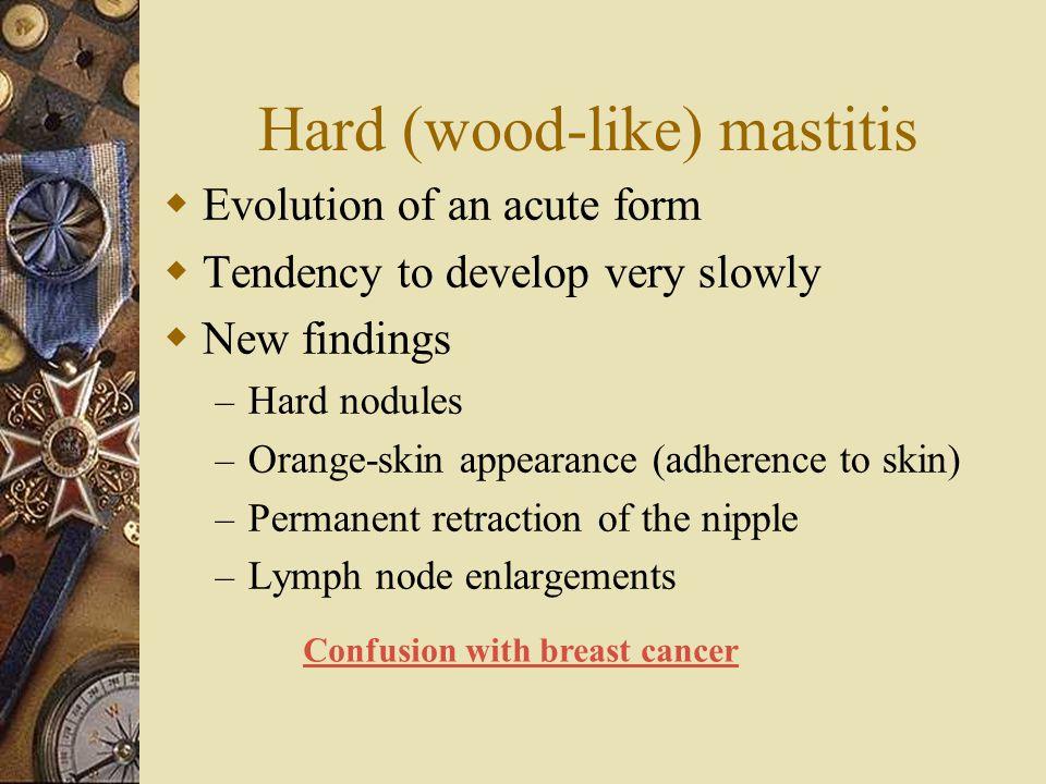 Hard (wood-like) mastitis