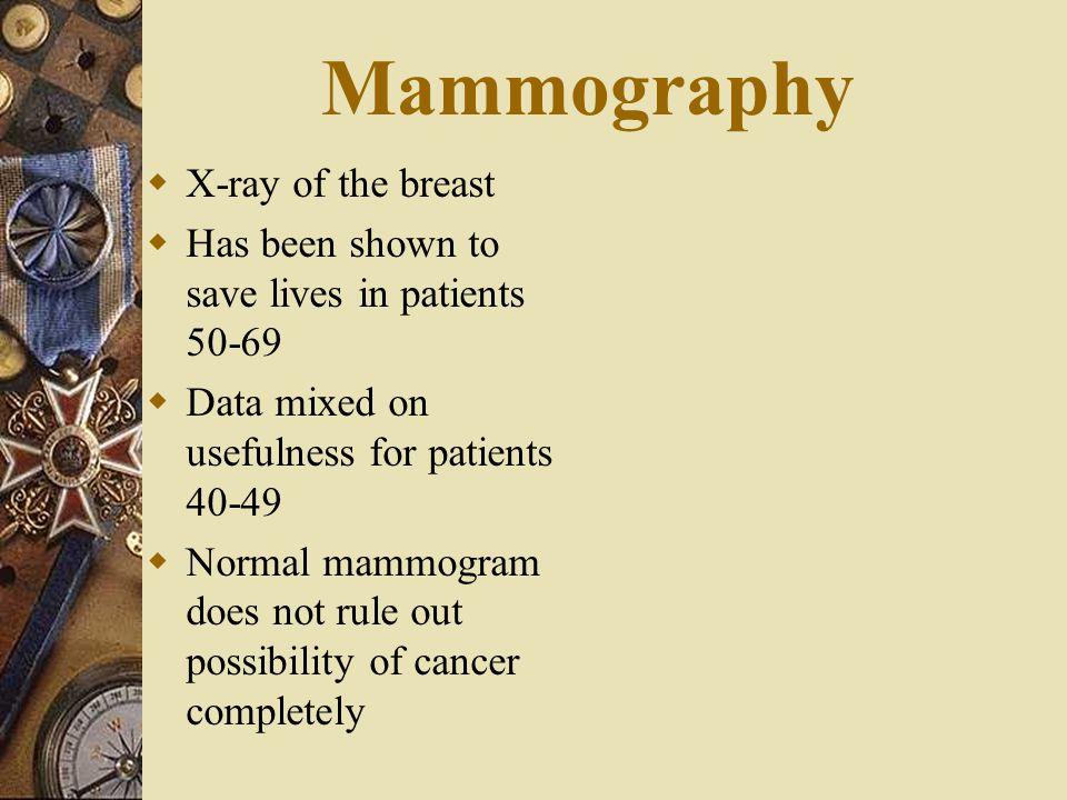 Mammography X-ray of the breast