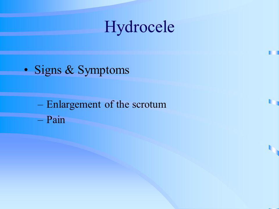Hydrocele Signs & Symptoms Enlargement of the scrotum Pain