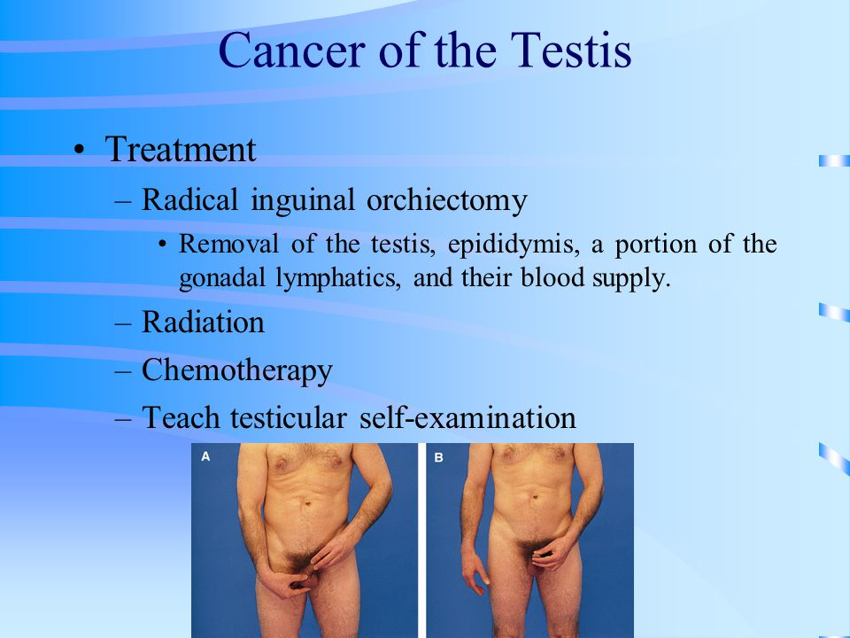 Cancer of the Testis Treatment Radical inguinal orchiectomy Radiation