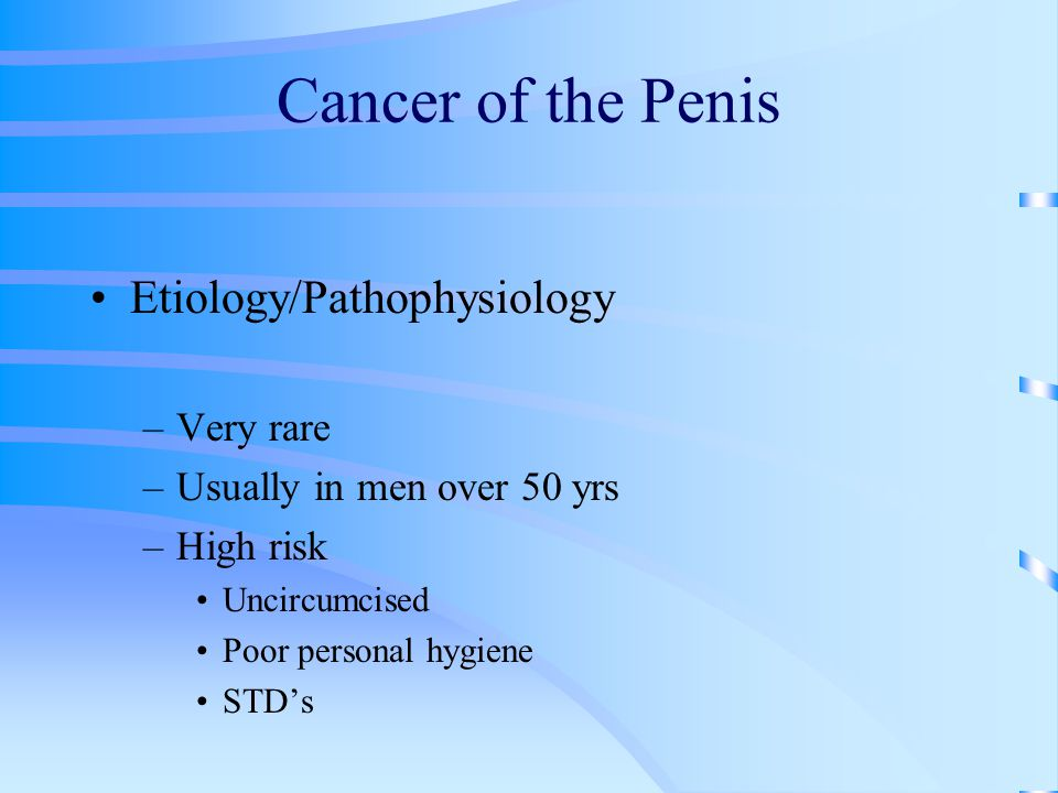 Cancer of the Penis Etiology/Pathophysiology Very rare