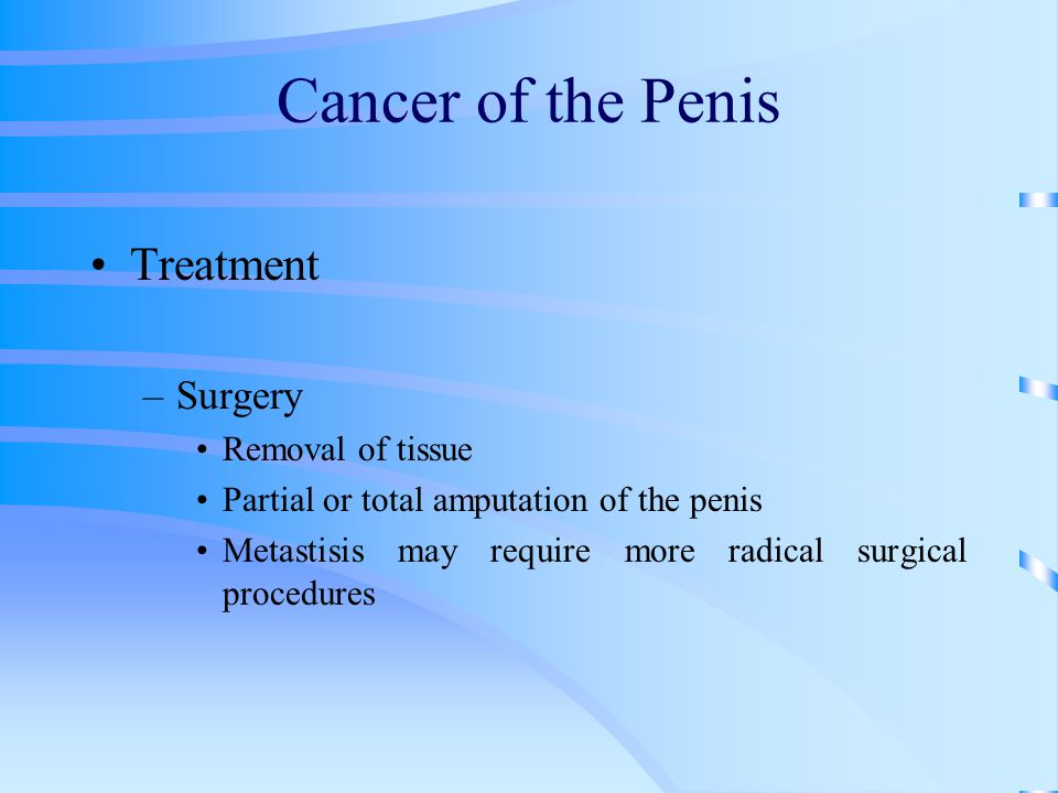 Cancer of the Penis Treatment Surgery Removal of tissue