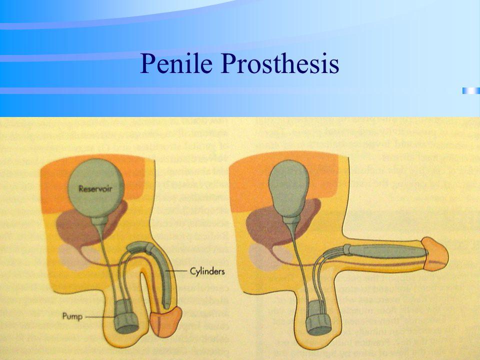 Penile Prosthesis