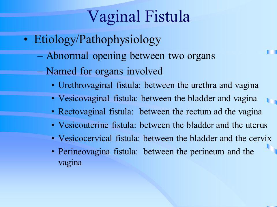 Vaginal Fistula Etiology/Pathophysiology