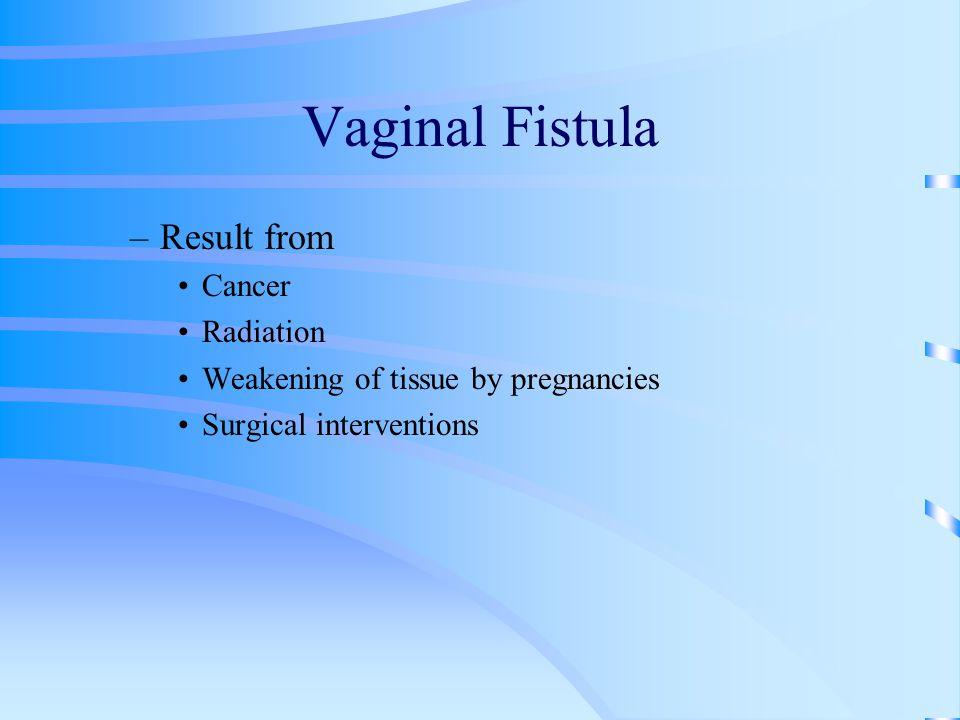 Vaginal Fistula Result from Cancer Radiation