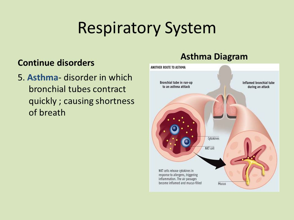 Respiratory System Asthma Diagram Continue disorders