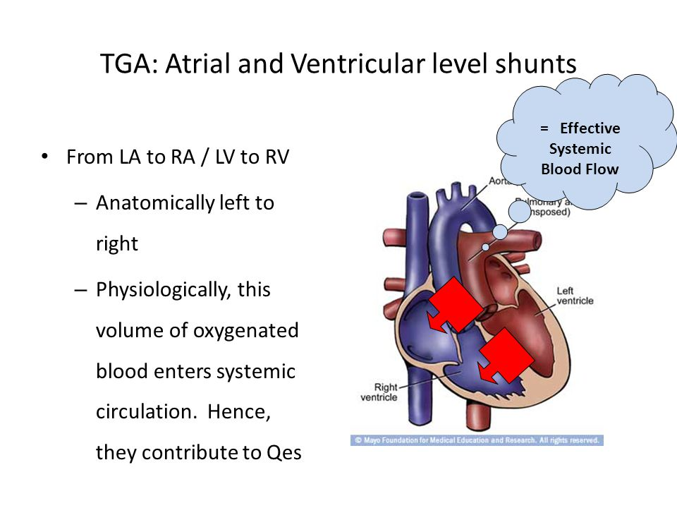 TGA: Atrial and Ventricular level shunts