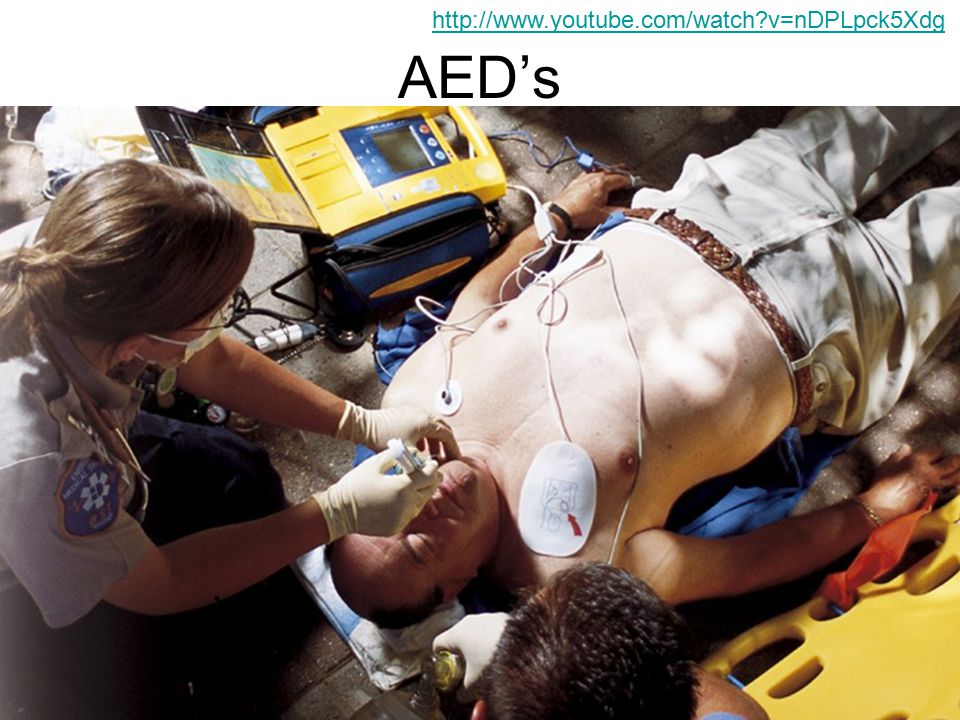 AED's An AED is and Automated External Defibrillator.