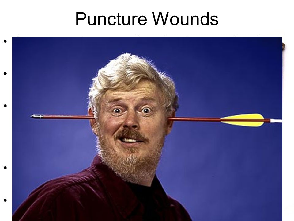 Puncture Wounds A puncture is a wound made when a pointed object (like a nail) pierces the skin.