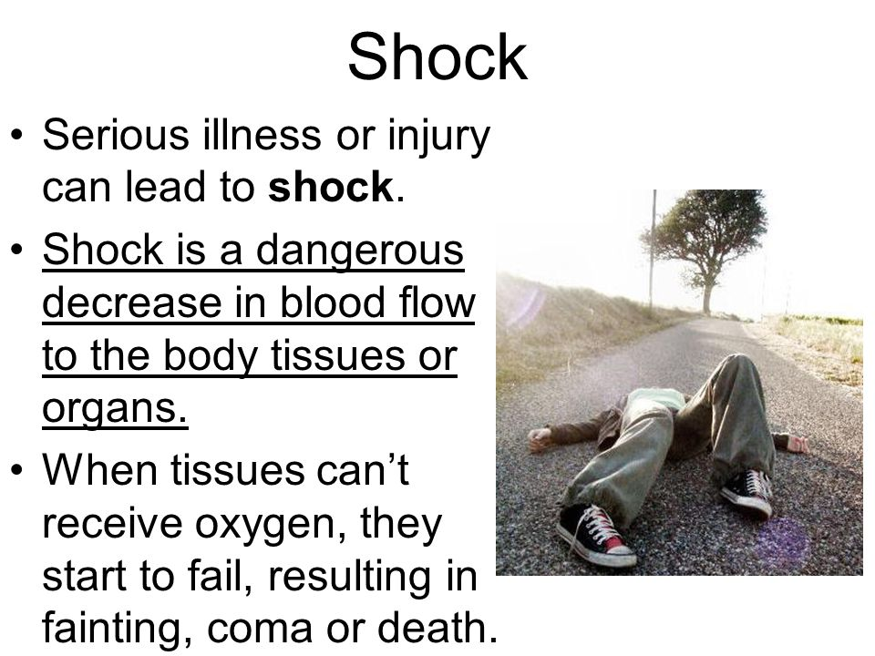 Shock Serious illness or injury can lead to shock.