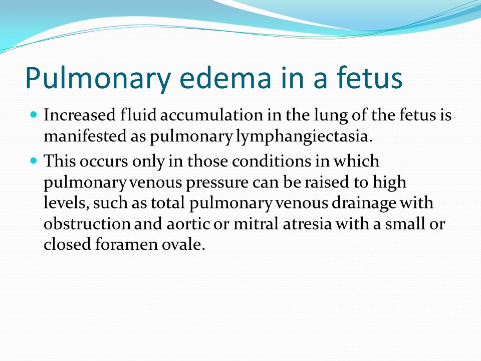 Pulmonary edema in a fetus