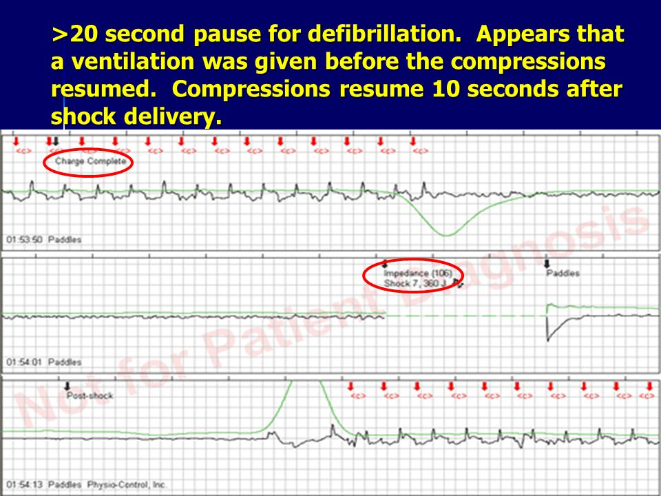 >20 second pause for defibrillation