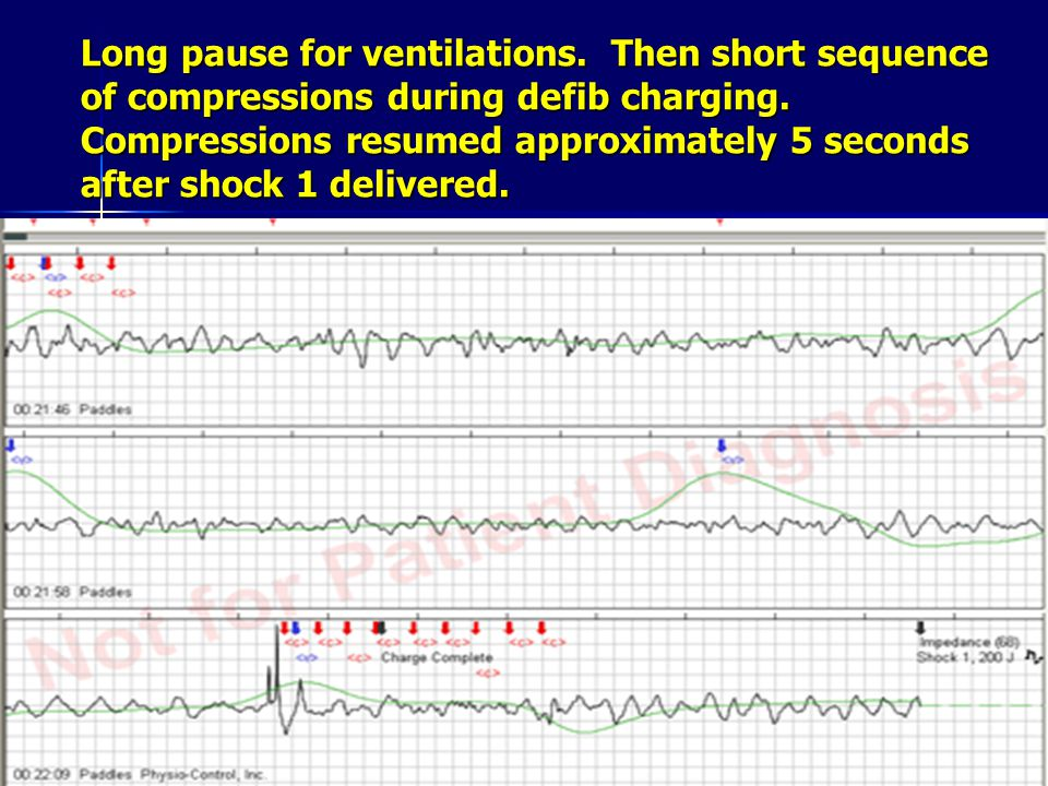 Long pause for ventilations