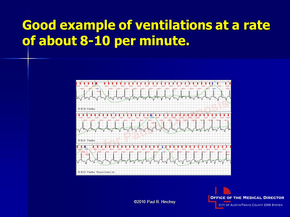 Good example of ventilations at a rate of about 8-10 per minute.