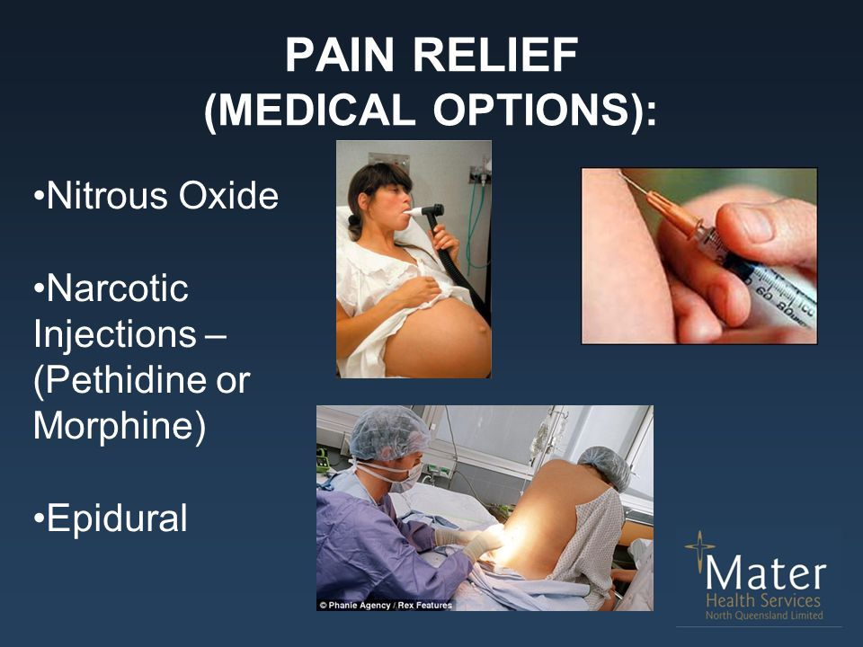 PAIN RELIEF (MEDICAL OPTIONS):