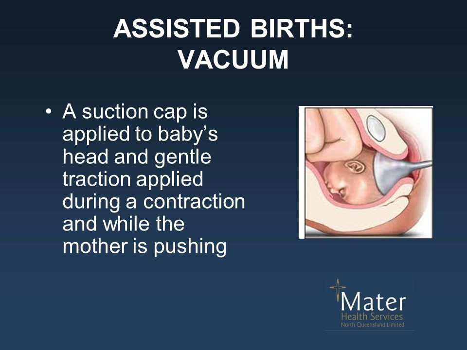 ASSISTED BIRTHS: VACUUM