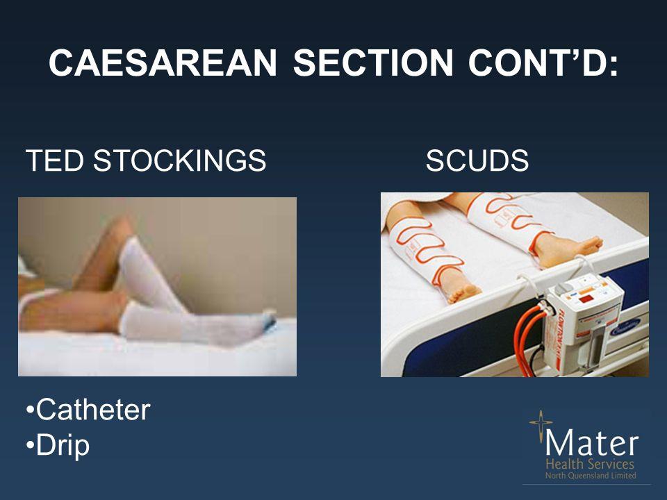 CAESAREAN SECTION CONT'D: