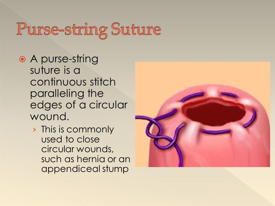 Purse-string Suture A purse-string suture is a continuous stitch paralleling the edges of a circular wound.