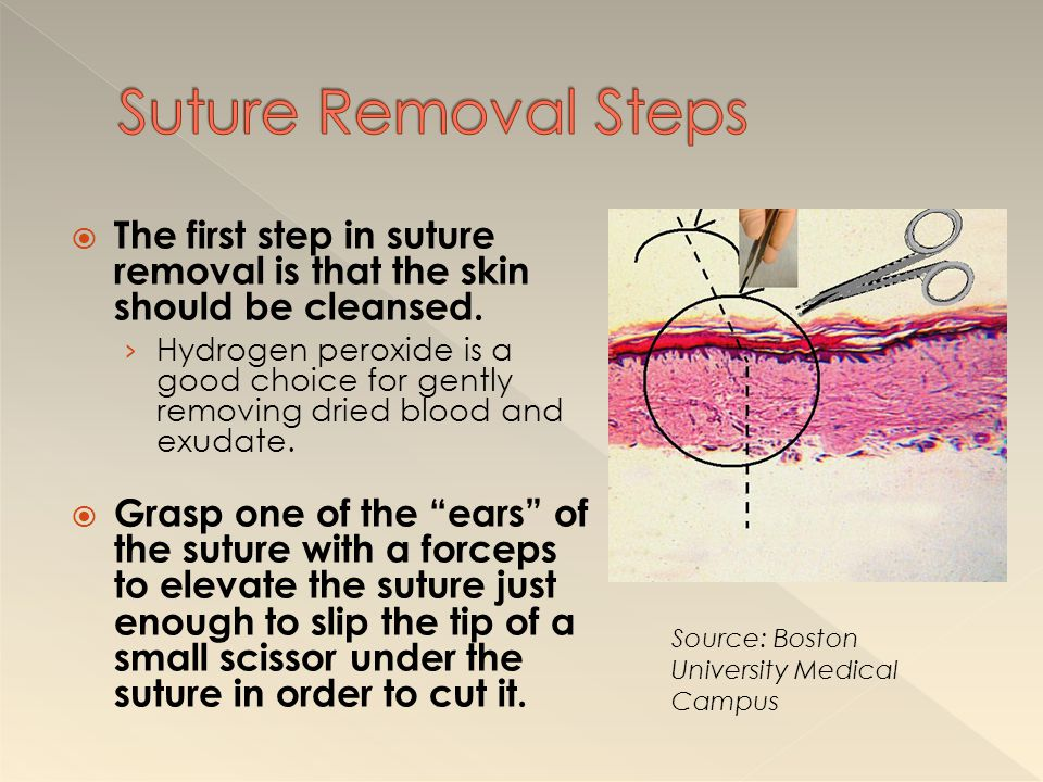 Suture Removal Steps The first step in suture removal is that the skin should be cleansed.