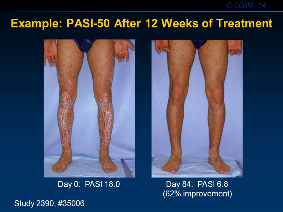 Example: PASI-50 After 12 Weeks of Treatment