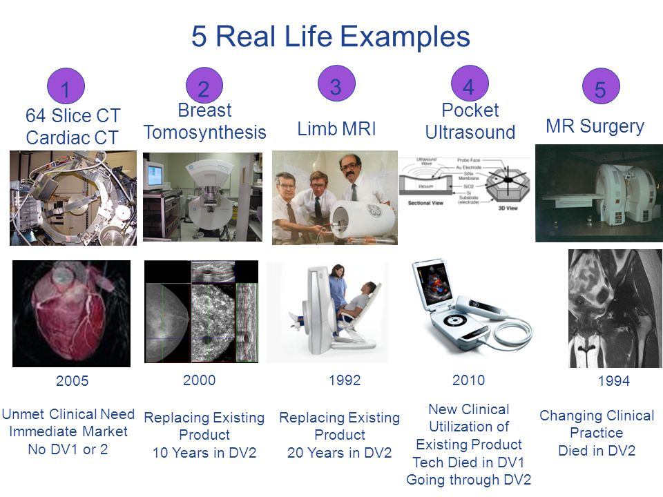5 Real Life Examples 1 2 3 4 5 Breast Tomosynthesis Pocket Ultrasound