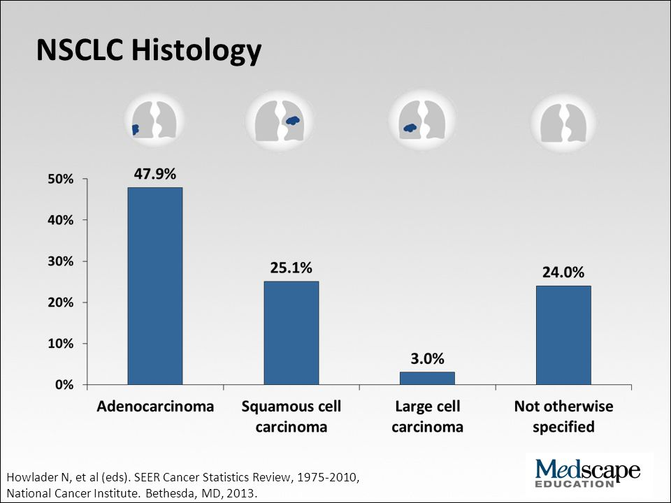 NSCLC Histology Howlader N, et al (eds).