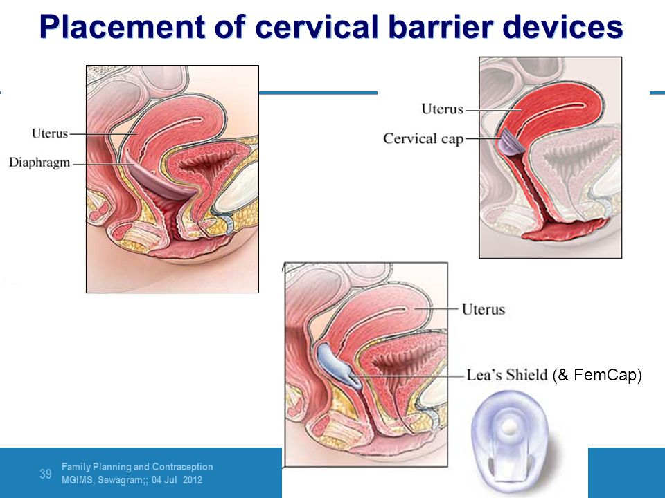 Placement of cervical barrier devices