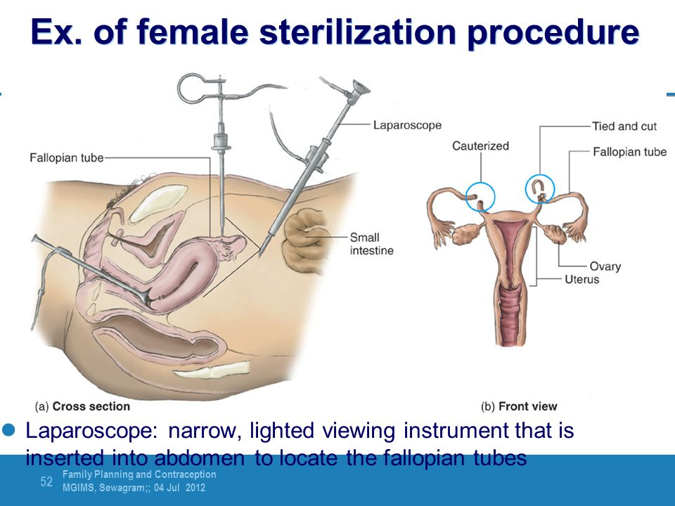 Ex. of female sterilization procedure