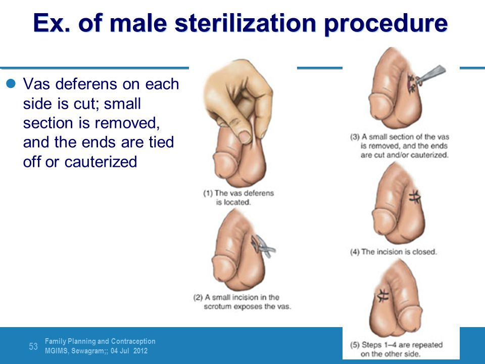 Ex. of male sterilization procedure