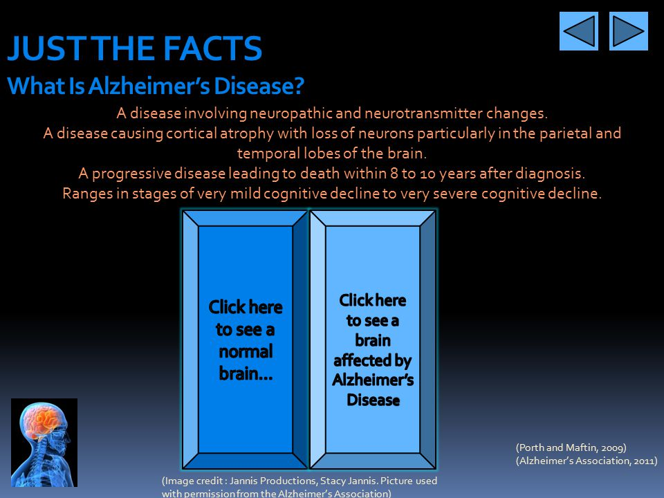 JUST THE FACTS What Is Alzheimer's Disease