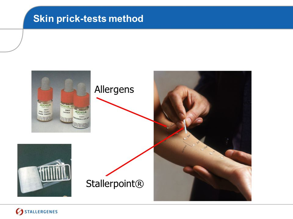 Skin prick-tests method