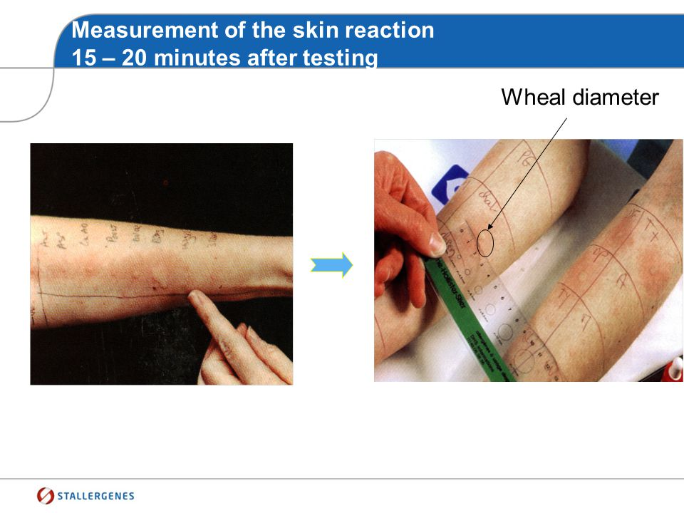 Measurement of the skin reaction 15 – 20 minutes after testing