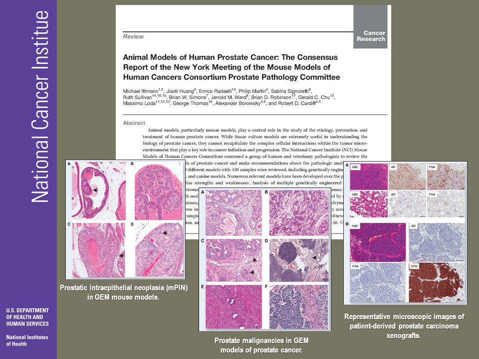 Prostatic intraepithelial neoplasia (mPIN) in GEM mouse models.