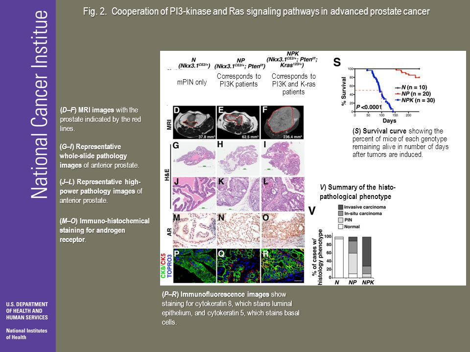 Fig. 2. Cooperation of PI3-kinase and Ras signaling pathways in advanced prostate cancer