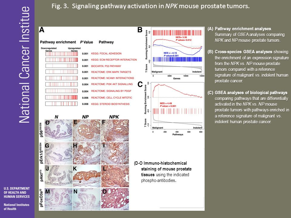 Fig. 3. Signaling pathway activation in NPK mouse prostate tumors.
