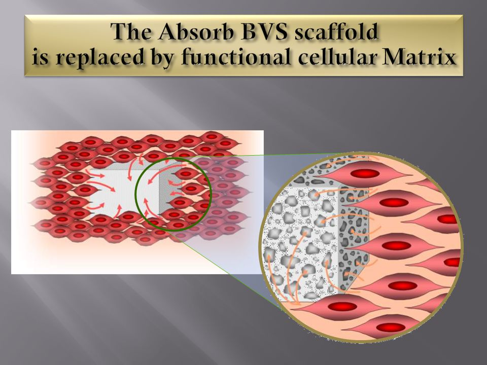 The Absorb BVS scaffold is replaced by functional cellular Matrix