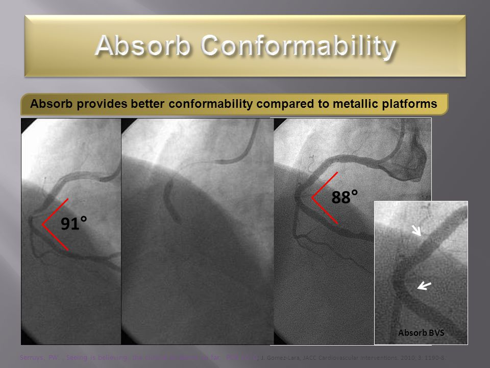Absorb Conformability
