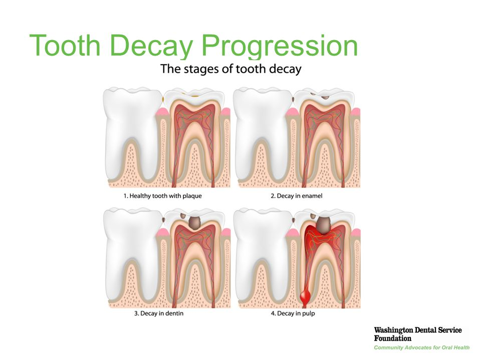 Tooth Decay Progression