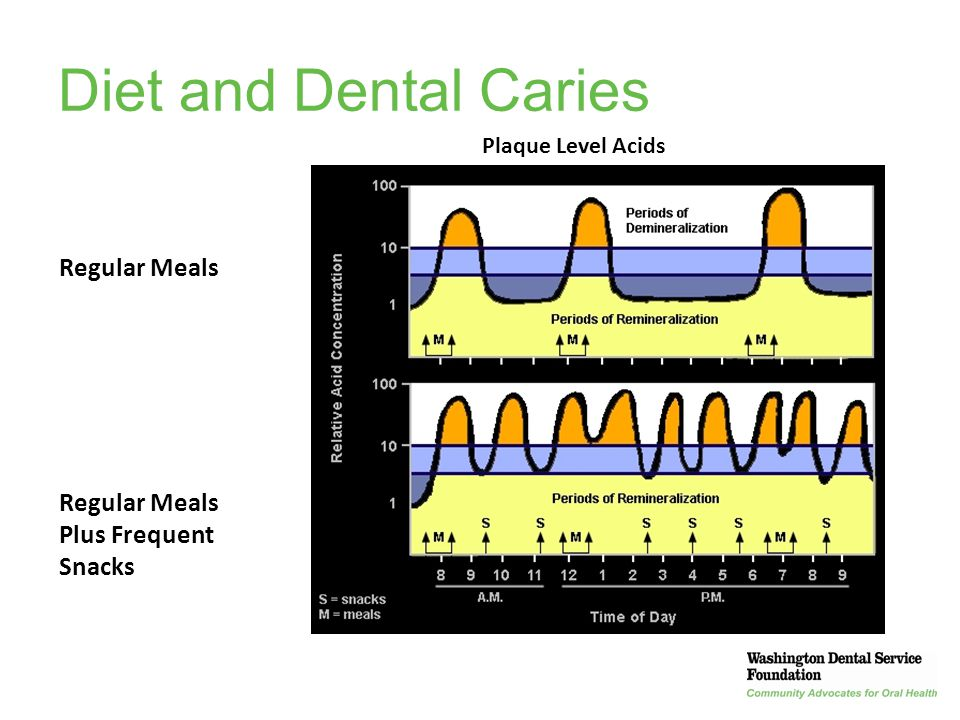 Diet and Dental Caries Eating Frequency Regular Meals
