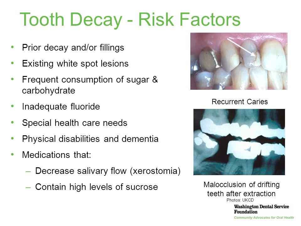 Tooth Decay - Risk Factors